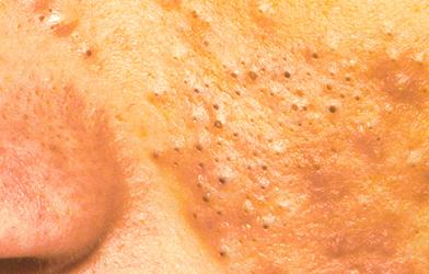 les peaux grasses